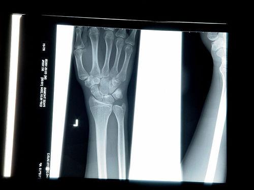 油断大敵。筋トレで手首を痛めました。原因と対策は?