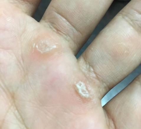 筋トレの勲章?カッコ悪い?手のひらの「タコ」の予防と対策